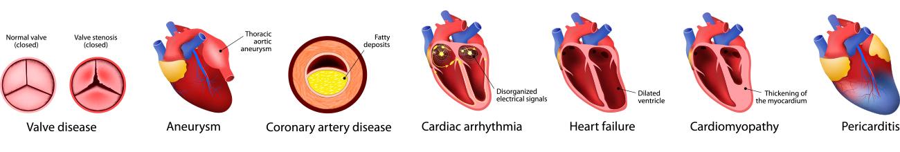 heart-disease-types