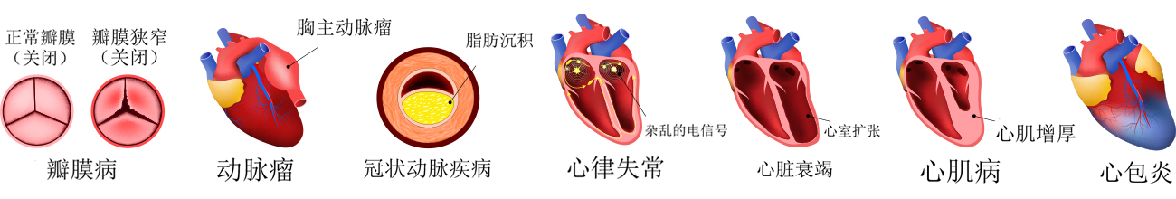 Types of heart disease in Chinese