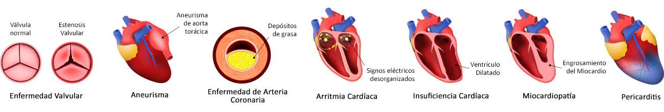 Types of heart disease in Spanish
