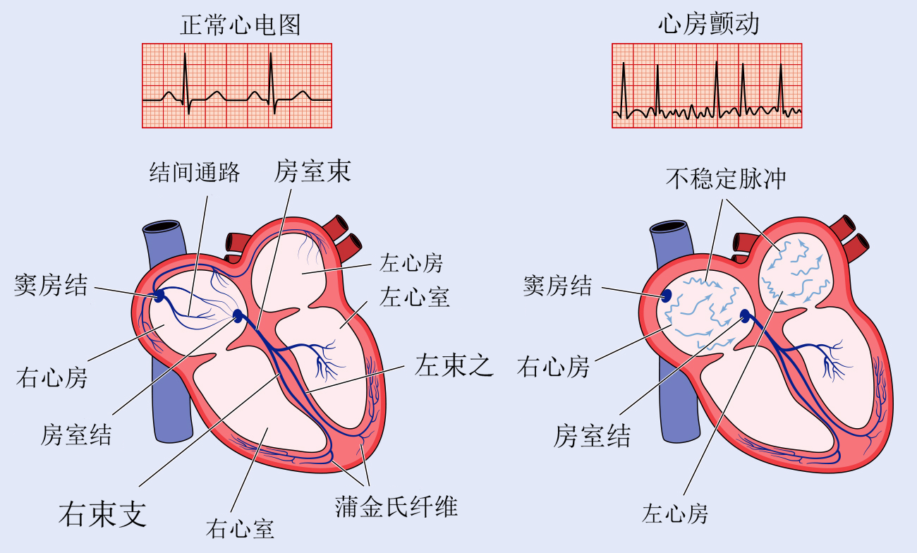 normal ECG of afib in Chinese