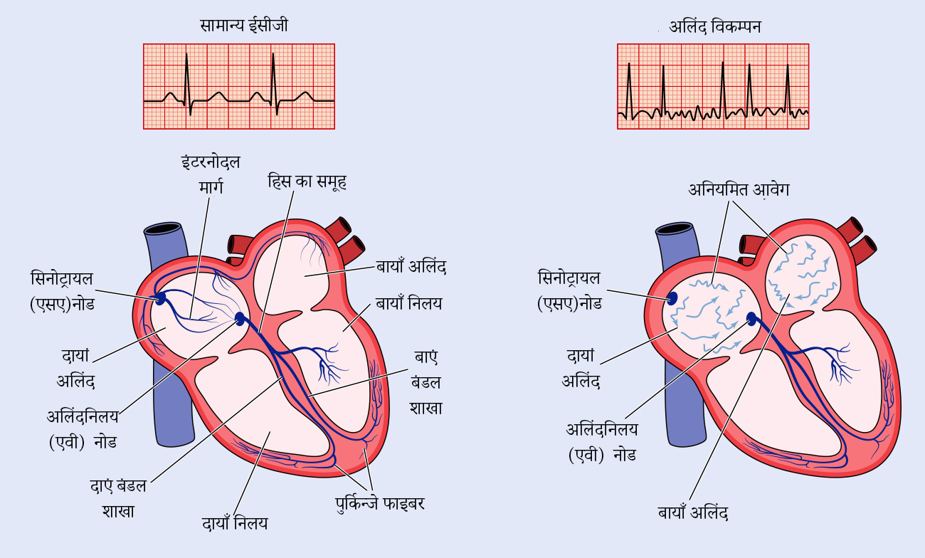 Normal ECG of afib - Hindi