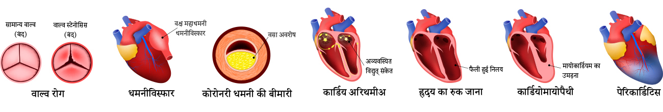 Types of heart disease - Hindi